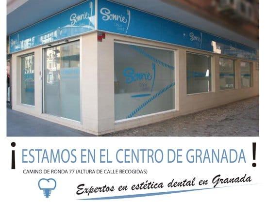 Clínica dental en el centro de Granada para estética dental
