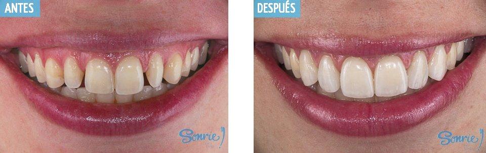 caso3 carillas dentales