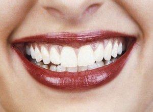 cirugía encías sonrie granada