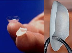 servicio carillas dentales granada