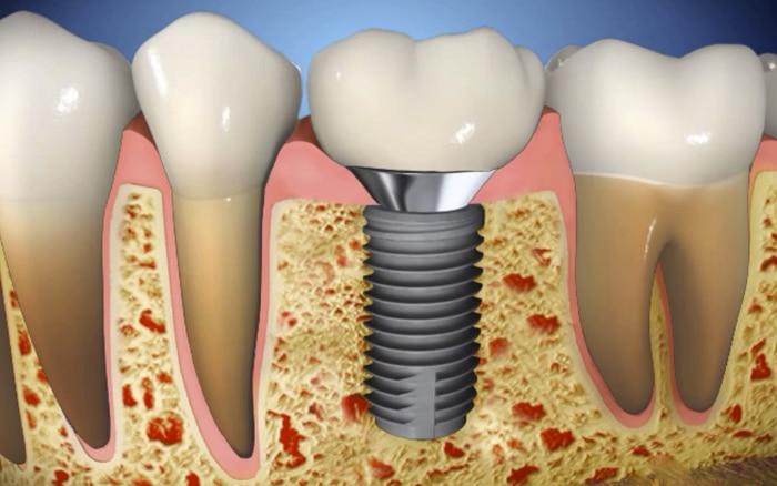cosas importantes para conocer sobre implantes dentales