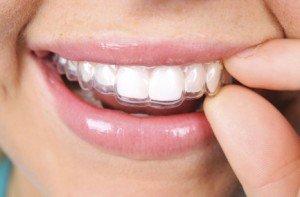 clinica ortodoncia en granada