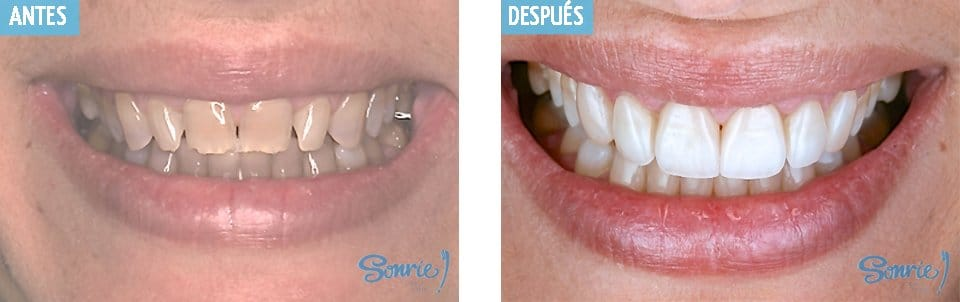 caso1 carillas dentales granada