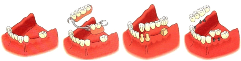 protesis dentales granada