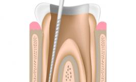 Servicio Endodoncia
