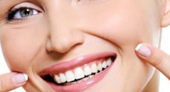 retenedores de ortodoncia
