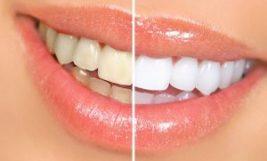 blanqueamiento dental granada